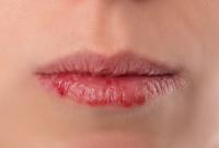 perawatan bibir kering